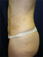 Lipo treatment by Connie Casad, MD