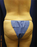 Back fat removed with lipo by Dr. Casad