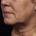 Double chin removal by Dr. Casad in Dallas, TX