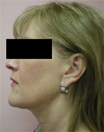 Double chin removal by Connie Casad, MD