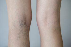 spider veins in Dallas
