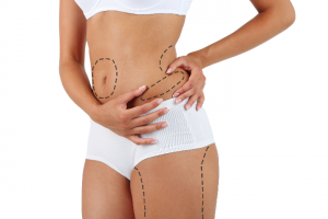 Liposuction treatment areas